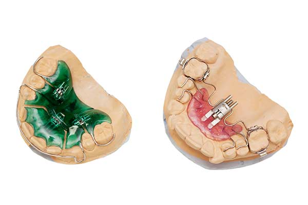Palatal expanders on clay models