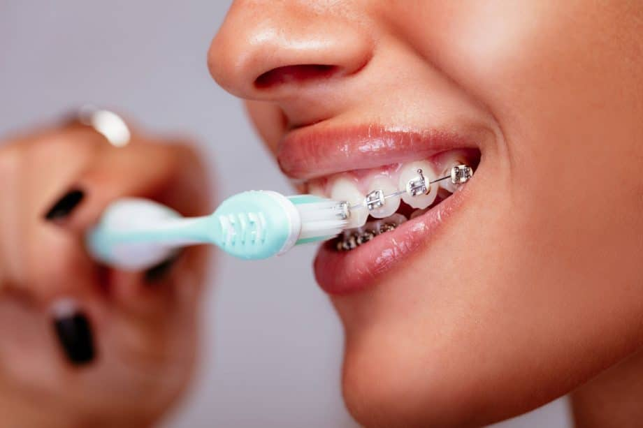 close up of woman wearing braces and brushing teeth