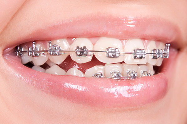 Braces to correct space between upper and lower teeth