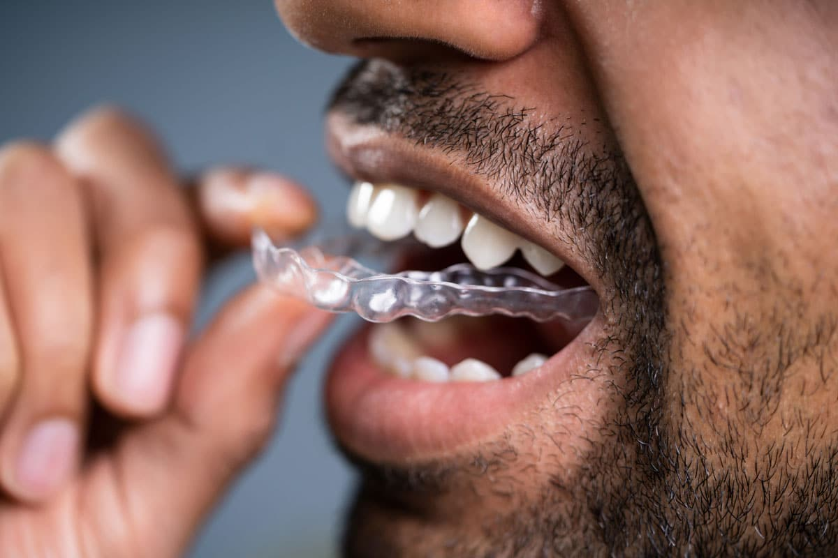 Retainers After Braces & Invisalign | Andover Orthodontics