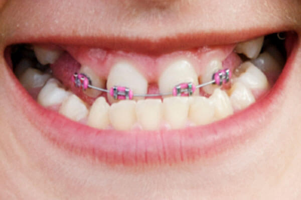 Braces to correct underbite